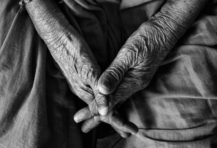 Parkinson's disease, Kingston, Ontario